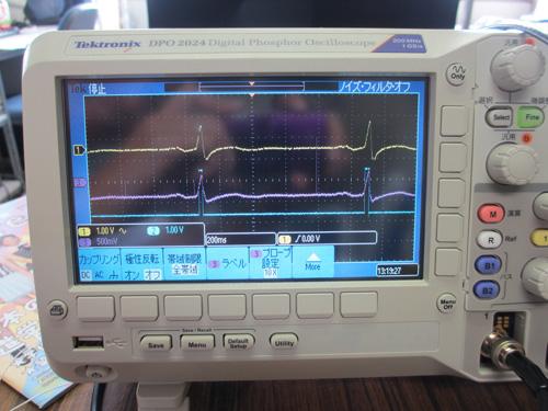 綺麗な心電計測結果
